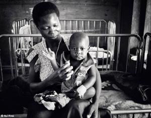 Fotojornalismo/Malaria